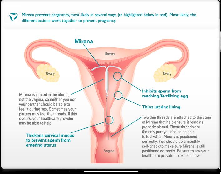 img-popup_uterus-diagram